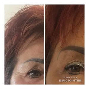 Szarkalábak Botox kezelése