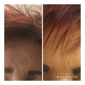 Homlok glabella ráncának Botox kezelése